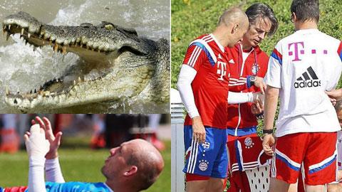 Sau giờ bóng lăn 18/1: Robben suýt mất tay vì… cá sấu