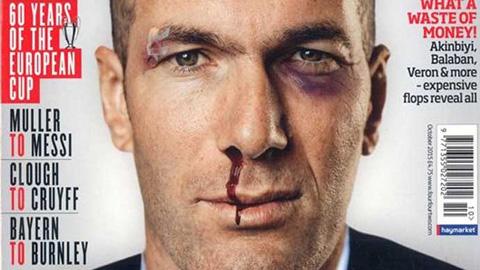 Zidane bị đánh chảy máu mũi, bầm tím mắt?
