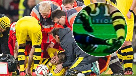 Marco Reus lại bị rách dây chằng mắt cá chân