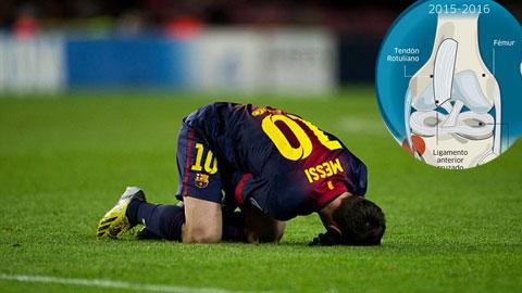 Hình ảnh chấn thương (ảnh nhỏ) đứt dây chằng đầu gối trái của Messi