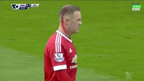 Rooney chảy nhiều máu ở đầu
