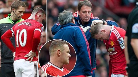 Rooney cần tới sự chăm sóc của lực lượng y tế